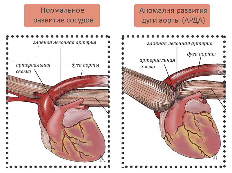Аномалия развития дуги аорты